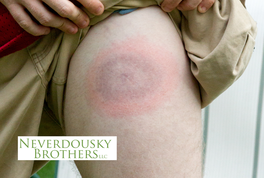 Lyme disease bullseye